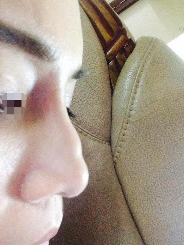 """Nâng mũi bằng chất làm đầy filler """"dởm"""" có thể gây nên hiện tượng mũi méo mó, ghồ ghề"""