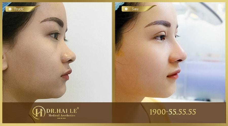 Khách hàng trước và sau khi nâng mũi Medi-Form tại Dr.Hải Lê