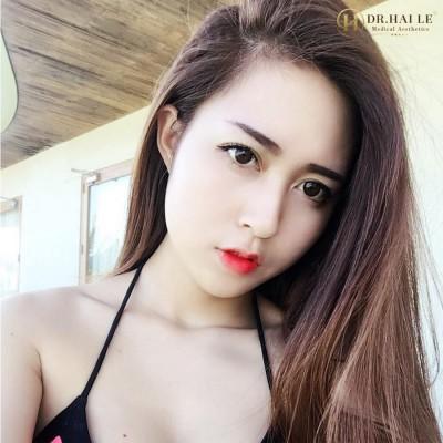 Hotgirl Việt sở hữu dáng mũi Medi Form thanh tú