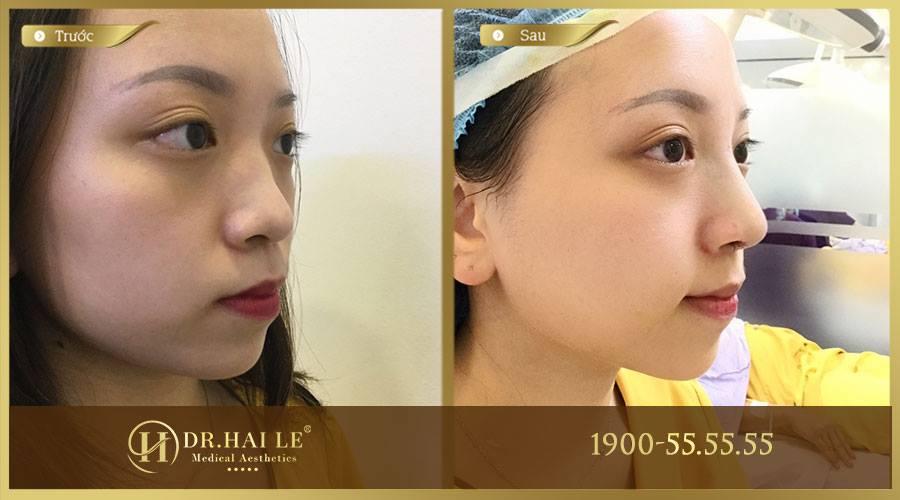 Khách hàng thực hiện nâng mũi Medi-Form tại Dr.Hải Lê