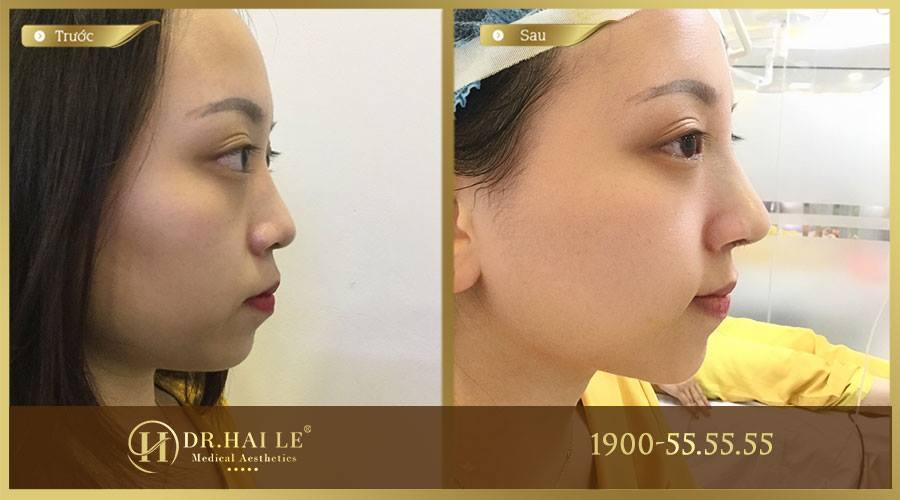 Hình ảnh khách hàng trước và sau khi thực hiện nâng mũi Demi-5D tại Dr.Hải Lê