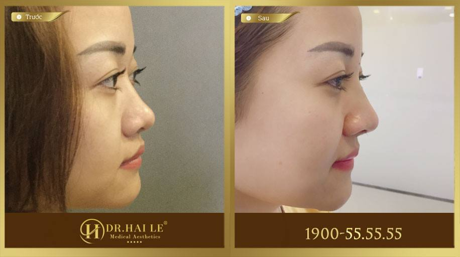 Hình ảnh của khách hàng trước và sau khi thực hiện nâng mũi Demi-5D