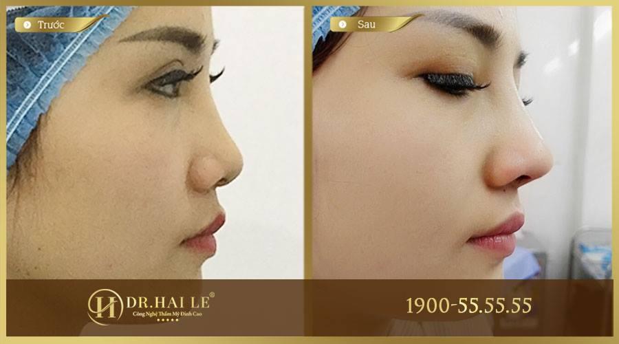 Khách hàng thực hiện nâng mũi khắc phục tình trạng mũi thấp tẹt tại Dr.Hải Lê