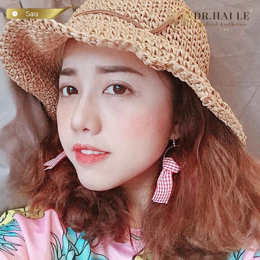 Ca sĩ Phùng Khánh Linh đã chọn Dr.Hải Lê, còn bạn thì sao?