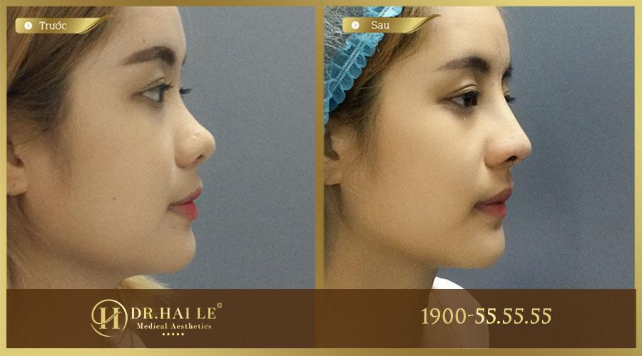 Khách hàng trước và sau khi thực hiện nâng mũi Medi-Form tại Dr.Hải Lê