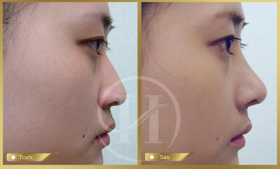 Hình ảnh khách hàng trước và sau khi thực hiện nâng mũi tại Dr.Hải Lê