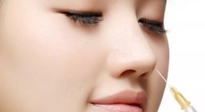 Nâng mũi tiêm Filler không sưng