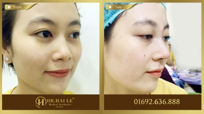 Khách hàng trải nghiệm dịch vụ nâng mũi Medi-Form tại Dr. Hải Lê