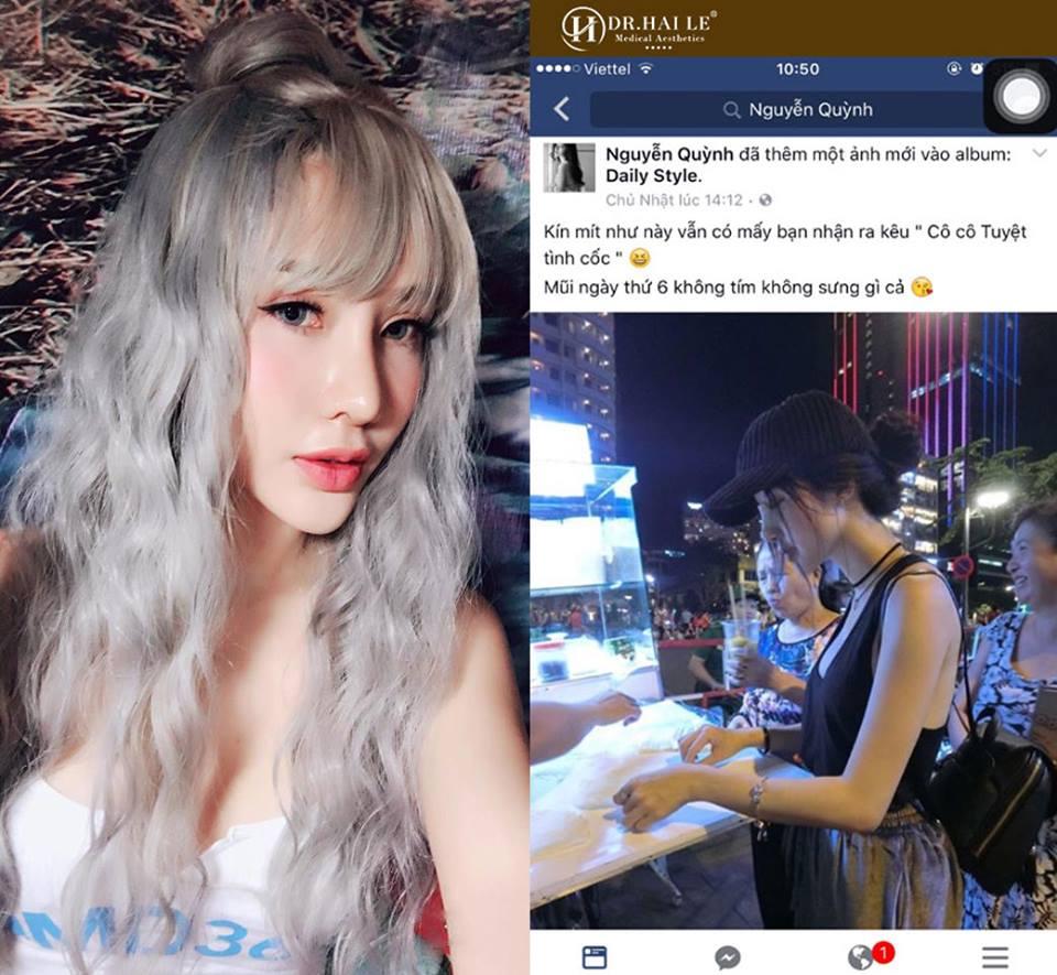 Hotgirl Quỳnh Ruby là người đầu tiên sở hữu dáng mũi Demi-5D tại Dr.Hải Lê