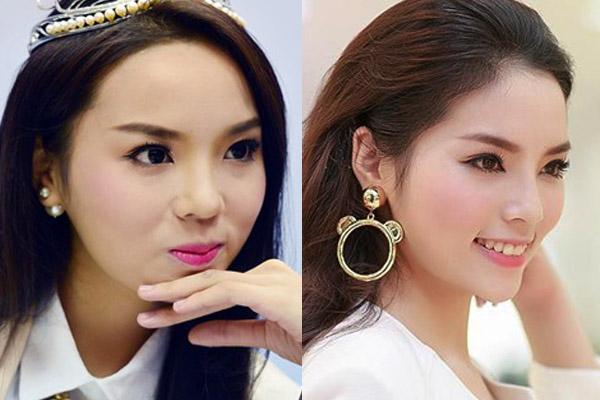 Hoa hậu Kỳ Duyên trước và sau khi nâng mũi