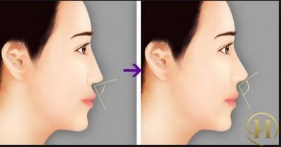 Nâng mũi S line có được vĩnh viễn không 4
