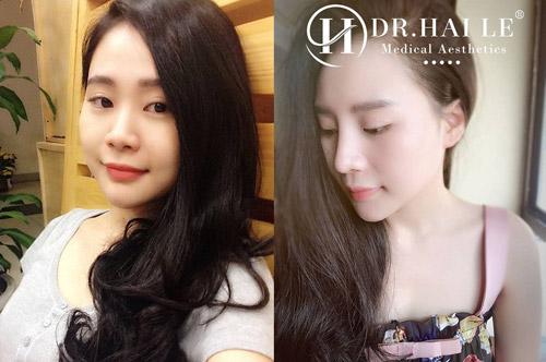 Hình ảnh khách hàng trước và sau khi nâng mũi thẩm mỹ tại Dr.Hải Lê