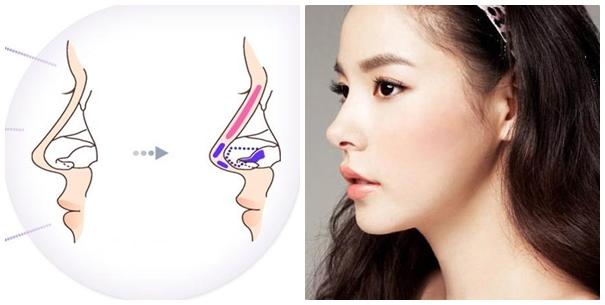 Nâng mũi S-line bao lâu thì đẹp? là vấn đề được nhiều chị em quan tâm
