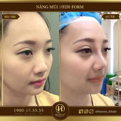 Review nâng mũi Medi Form tại Dr.Hải Lê