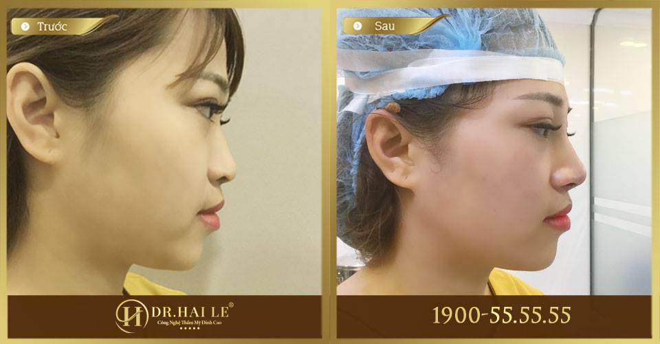 Hình ảnh trước và sau khi nâng mũi L-line 2 lớp Double L tại Dr.Hải Lê