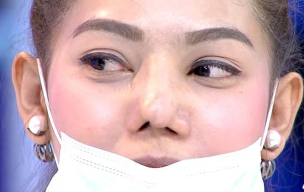 Kẹp nâng mũi gây vẹo, lệch dáng mũi