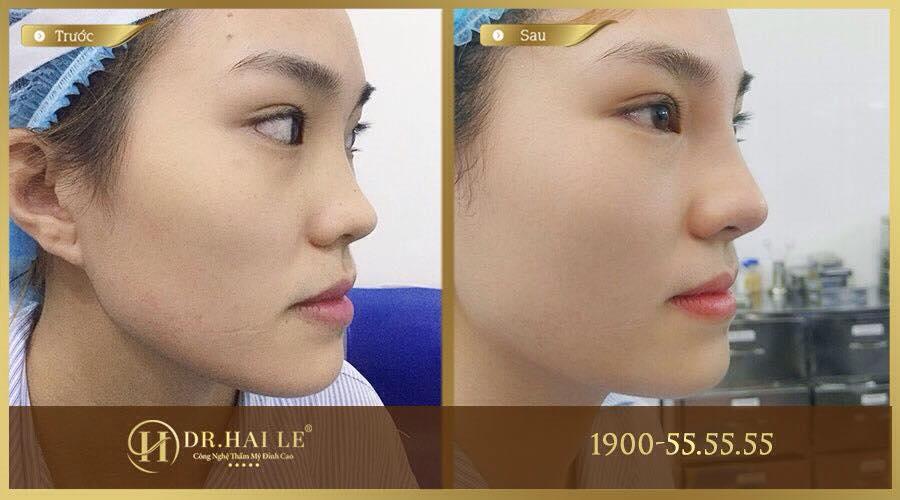 Hình ảnh nâng mũi L Line tại Dr. Hải Lê