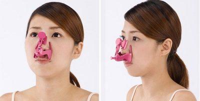 Dụng cụ thu gọn cánh mũi là gì