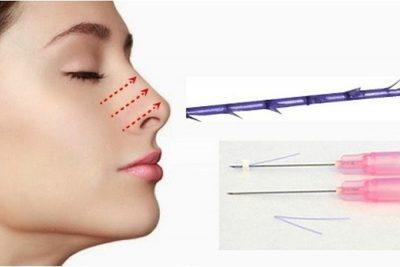 Nâng mũi bằng chỉ Collagen là gì?