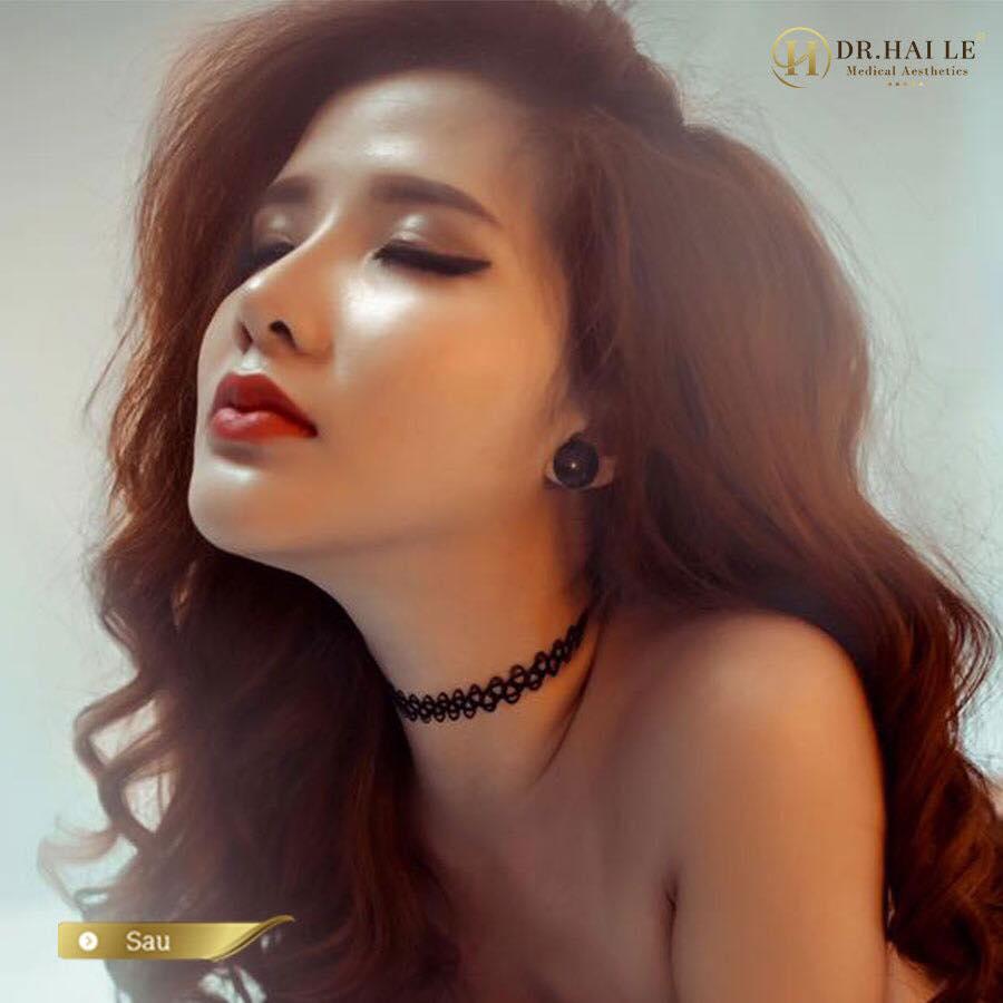 Hotgirl Quỳnh Ruby, người đầu tiên sở hữu dáng mũi Demi -5D tại Dr.Hải Lê