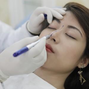 Bác sĩ đo vẽ tỉ lệ dáng mũi