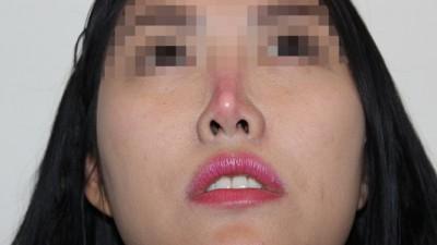 Đầu mũi bị đỏ bóng và lộ sống