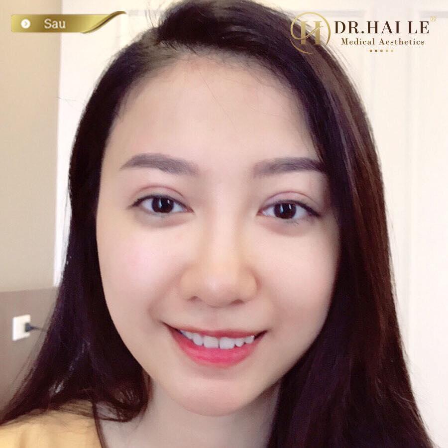 Nâng mũi Demi-5D tại Dr.Hải Lê không để lại sẹo