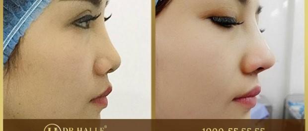 ảnh trước sau nâng mũi demi 5d của thu trang