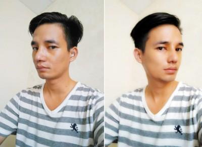 Sau khi sửa mũi, chỉnh cằm, gương mặt Lệ Rơi đã có những khác biệt, đường nét thanh thoát và hài hòa hơn.