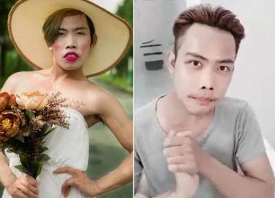Thật sự, nếu so sánh hình ảnh trước và sau khi phẫu thuật của Tùng Sơn thì khó lòng có thể nhận ra đây cùng là một người. Nổi bật điểm nhấn toàn khuôn mặt là chiếc mũi cao thon gọn hút ánh nhìn