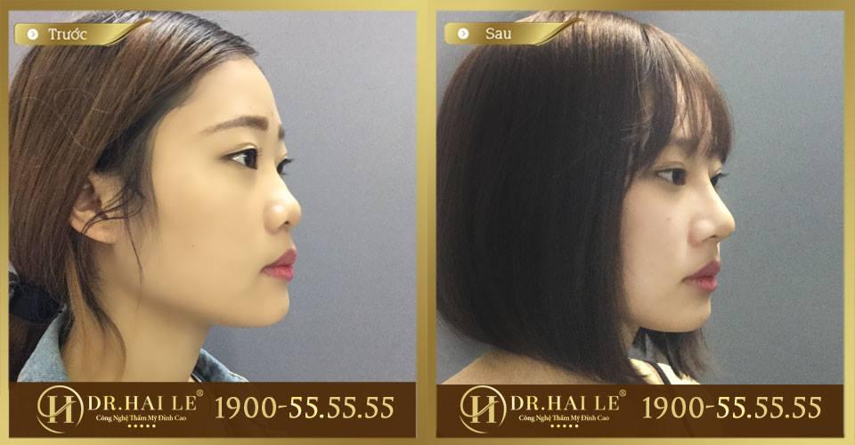 Hình ảnh trước và sau của khách hàng khi thực hiện nâng mũi Demi-5D Dr.Hải Lê
