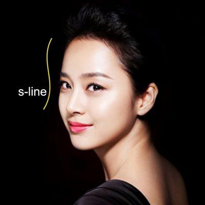 nâng mũi S Line
