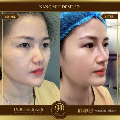 Kết quả nâng mũi Demi 5D Dr.Hải Lê