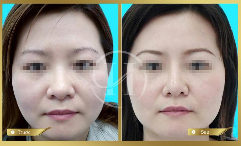 Khách hàng trước và sau khi thực hiện thu gọn cánh mũi tại Dr.Hải Lê