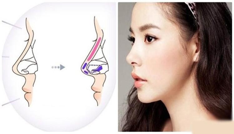 Không dùng sụn tai để nâng cao sóng mũi