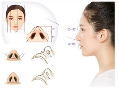 thu gọn cánh mũi không phẫu thuật có để lại sẹo không