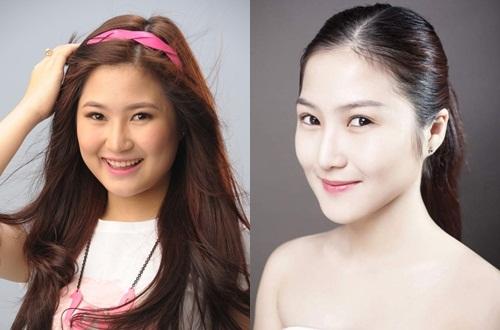 Hình ảnh trước và sau khi thực hiện nâng mũi của Hương Tràm