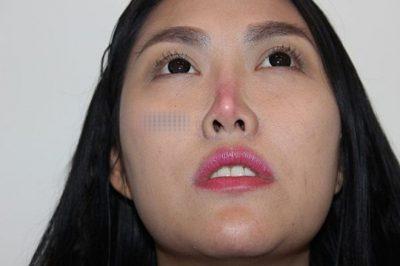 Biến chứng nâng mũi bằng silicon