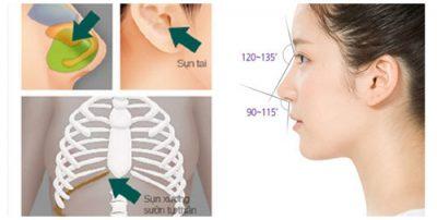 Một số lưu ý nên tránh khi nâng mũi S line 2