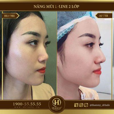Chỉnh sửa mũi tẹt bằng phương pháp nâng mũi L Line