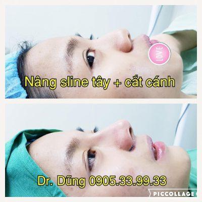 Cắt cánh mũi tại Dr. Dũng