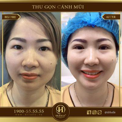 Hình ảnh trước và sau khi thu gọn cánh mũi
