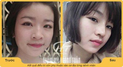 Ảnh trước và sau khi sử dụng dịch vụ thu gọn cánh mũi tại Dr.Hoàng Tuấn