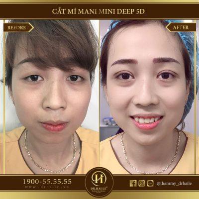 Hình ảnh trước và sau khi cắt mí mini deep 5D tại Dr.Hải Lê