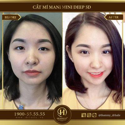 Trước và sau khi cắt mí tại Dr.Hải Lê