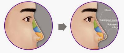 3 điều nhất định biết khi nâng mũi nam giới