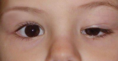 Cắt mí tại Dr.Hải Lê khắc phục được mắt to mắt nhỏ ở trẻ sơ sinh