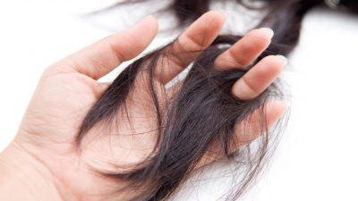 Rụng tóc là một trong những dấu hiệu của căn bệnh lupus